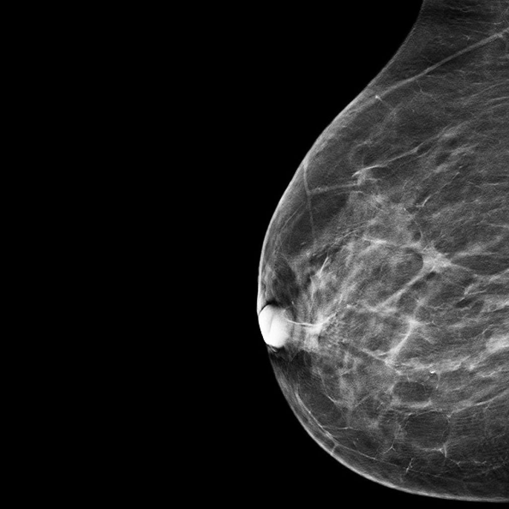 mammography centres in kharadi pune